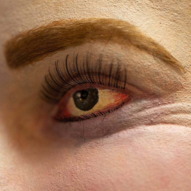 rode en droge ogen, emma